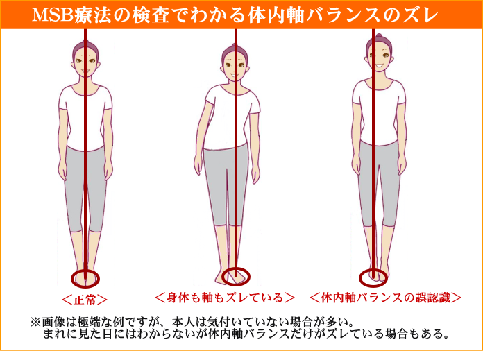 津島げんき整体院でわかる体内軸バランスの図