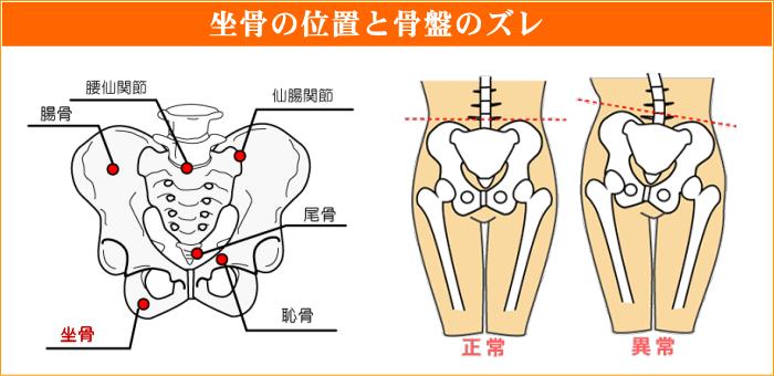 坐骨の位置と骨盤のズレ