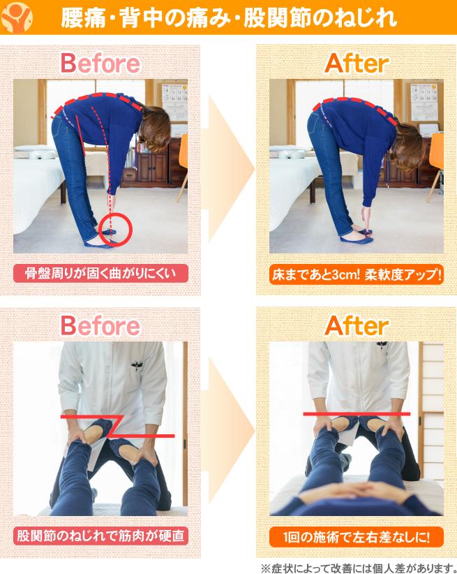 腰痛・背中の痛み・股関節のねじれ