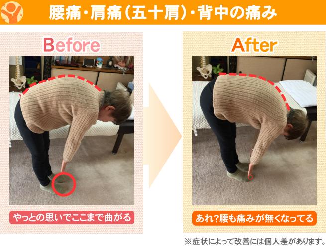 腰痛・肩痛(五十肩)・背中の痛み